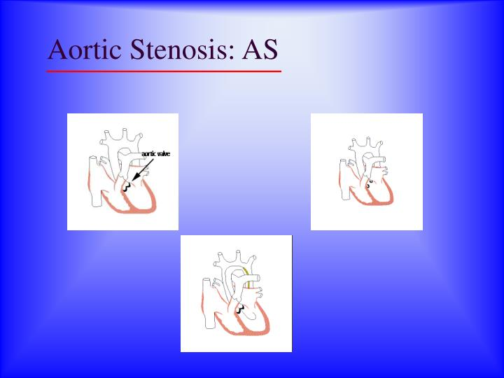 Aortic Stenosis: AS