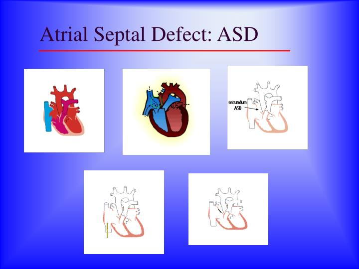 Atrial Septal Defect: ASD