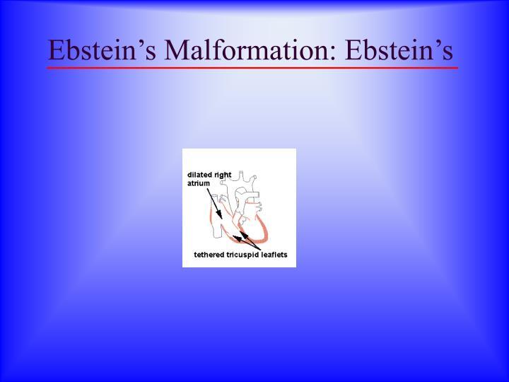 Ebstein's Malformation: Ebstein's