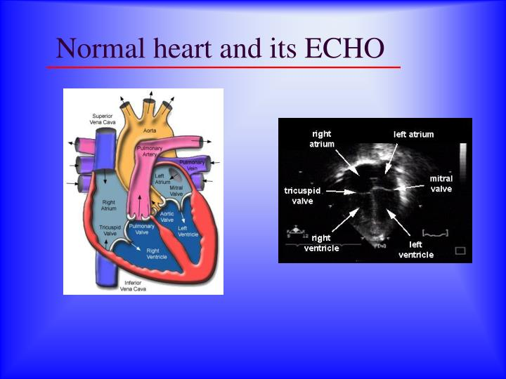 Normal heart and its ECHO