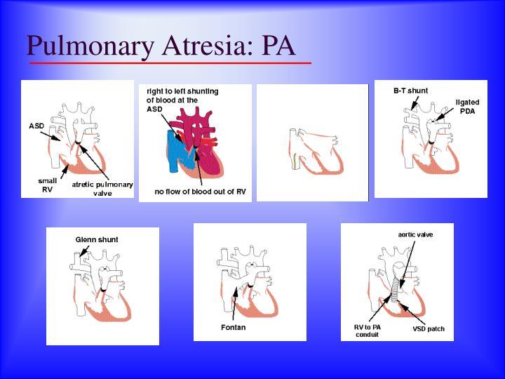 Pulmonary Atresia: PA