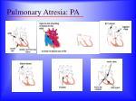pulmonary atresia pa