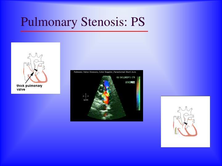 Pulmonary Stenosis: PS