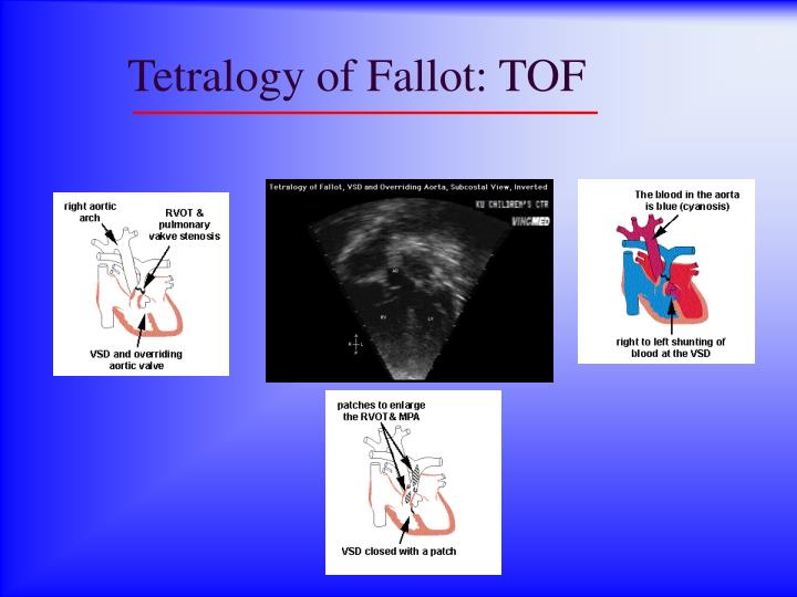Tetralogy of Fallot: TOF