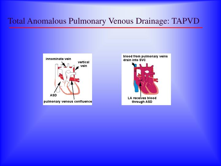 Total Anomalous Pulmonary Venous Drainage: TAPVD