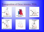 transposition of great arteries tga