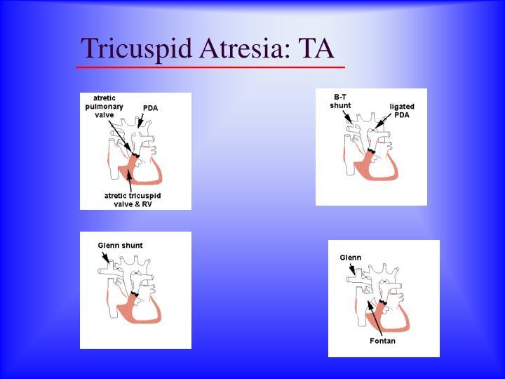 Tricuspid Atresia: TA