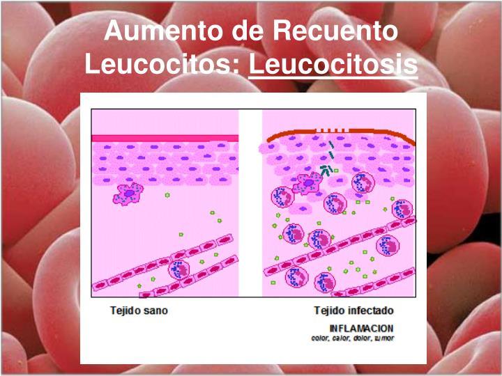 Aumento de Recuento Leucocitos: