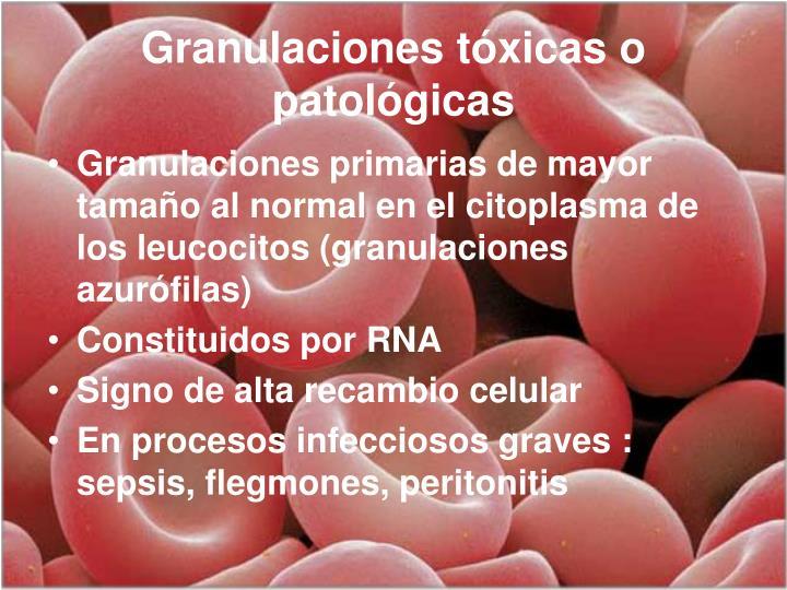 Granulaciones tóxicas o patológicas