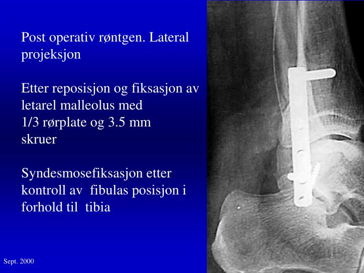 Post operativ røntgen. Lateral