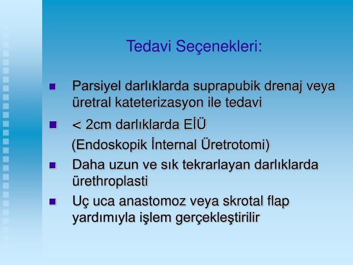 Tedavi Seçenekleri: