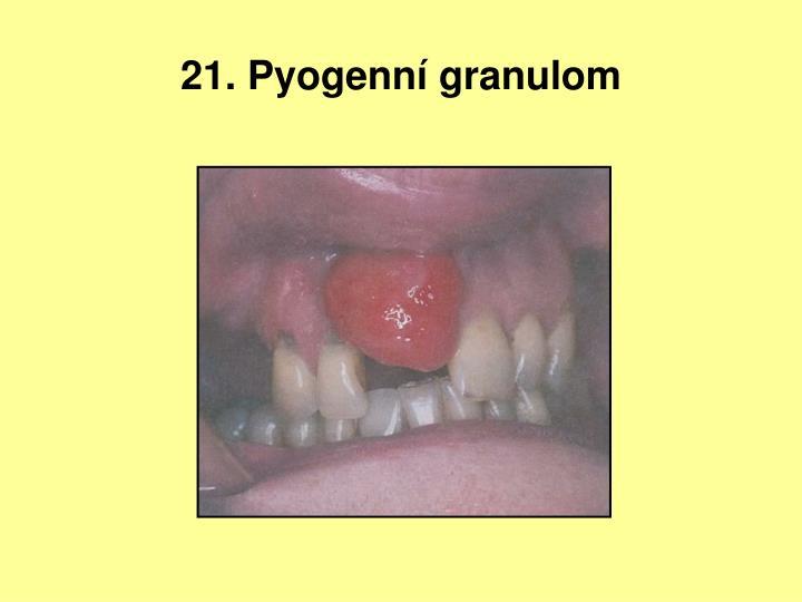 21. Pyogenní granulom