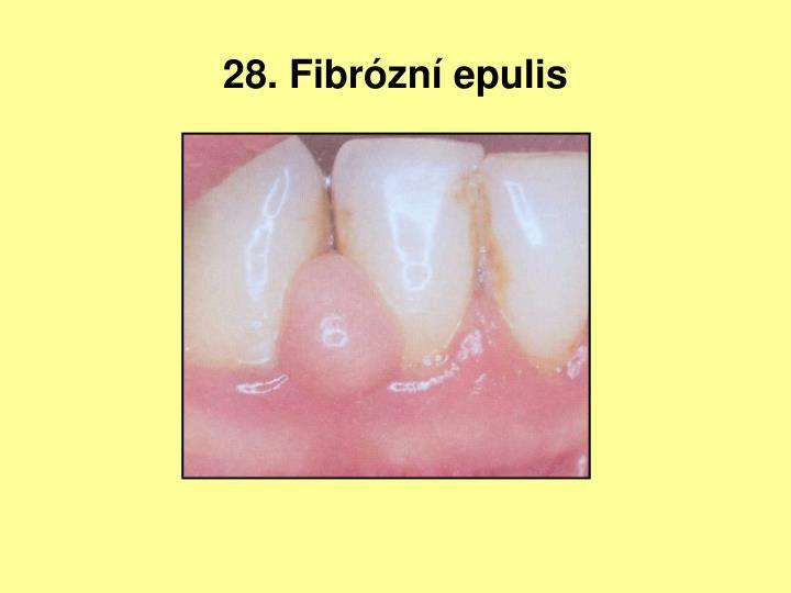 28. Fibrózní epulis