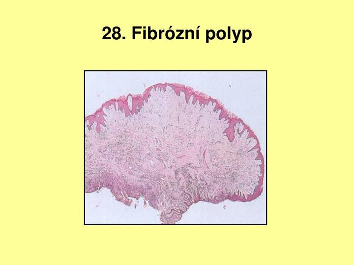 28. Fibrózní polyp