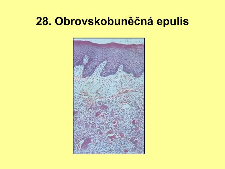 28. Obrovskobuněčná epulis