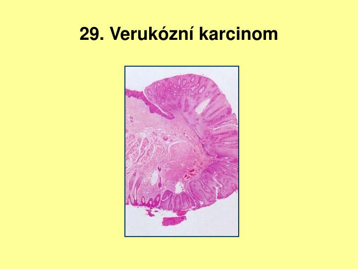 29. Verukózní karcinom