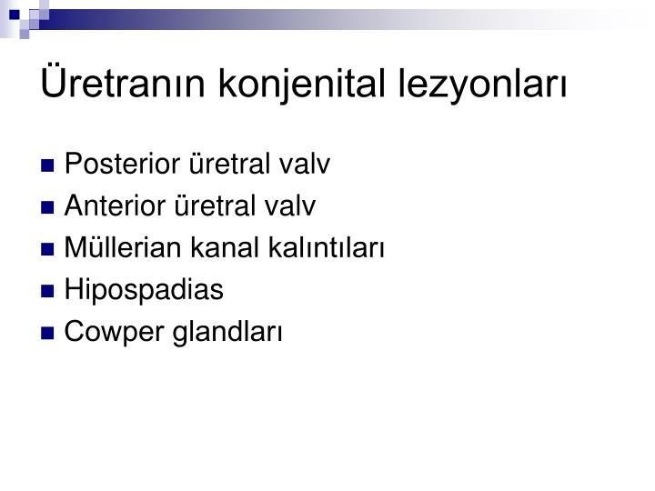 Üretranın konjenital lezyonları