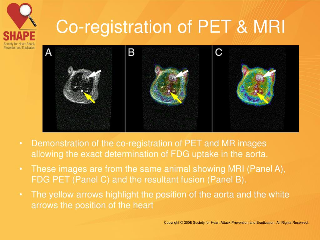 Co-registration of PET & MRI