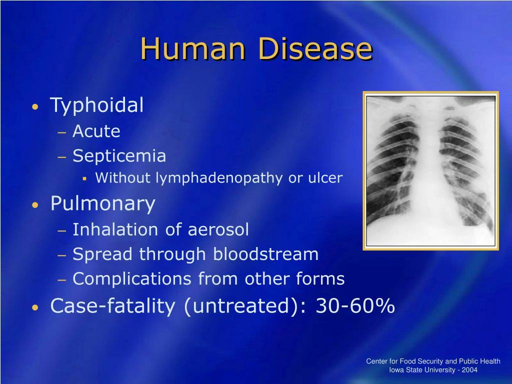 Human Disease