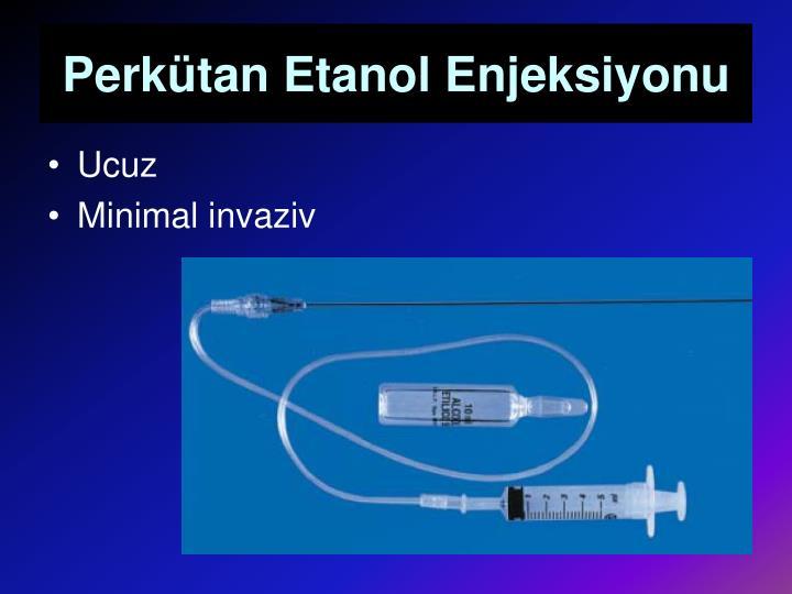 Perkütan Etanol Enjeksiyonu