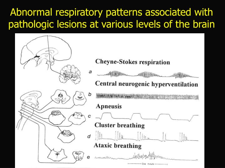 Abnormal respiratory patterns associated with pathologic lesions at various levels of the brain