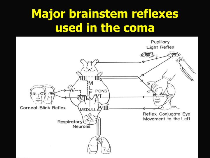 Major brainstem reflexes used in the coma