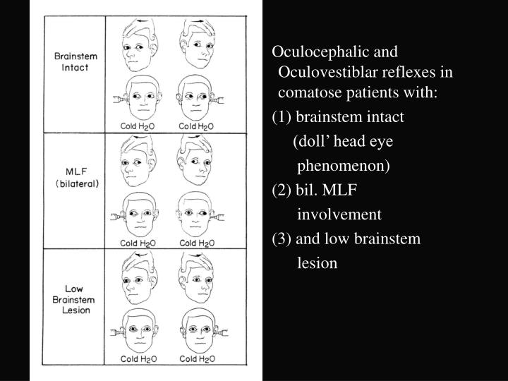 Oculocephalic and Oculovestiblar reflexes in comatose patients with:
