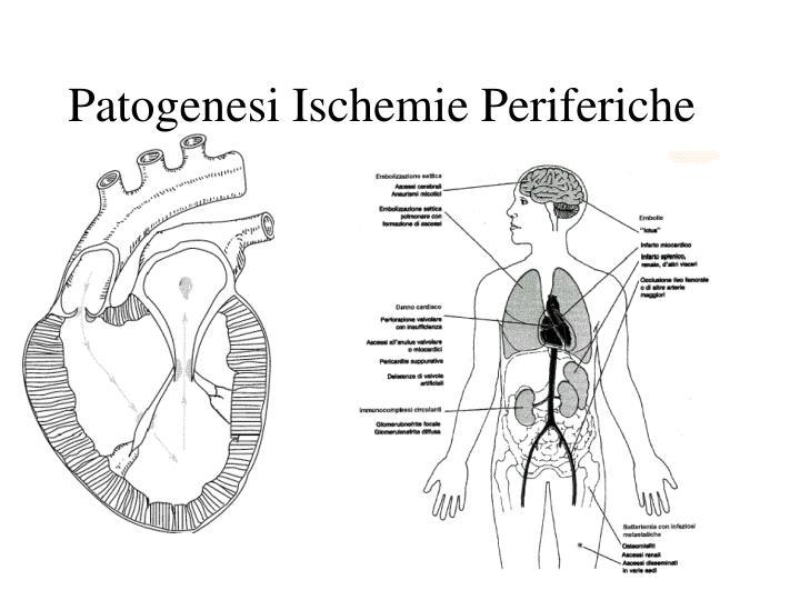 Patogenesi Ischemie Periferiche