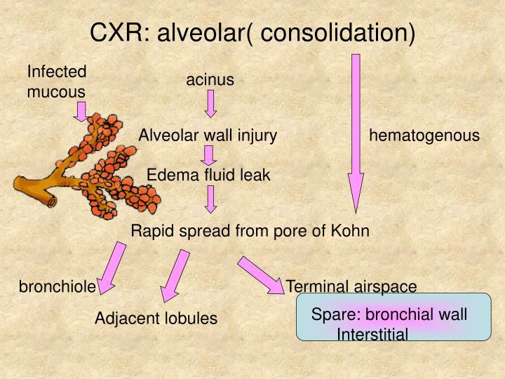 CXR: alveolar( consolidation)