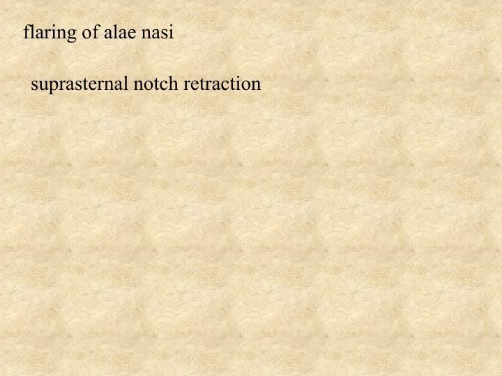 flaring of alae nasi