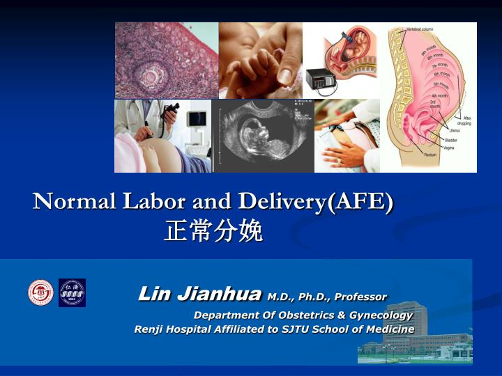 Normal labor and delivery afe