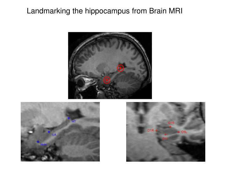 Landmarking the hippocampus from Brain MRI