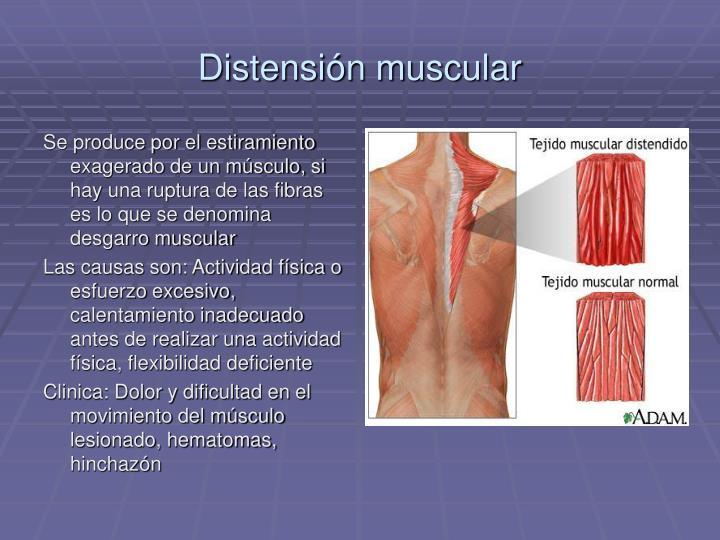 Distensión muscular
