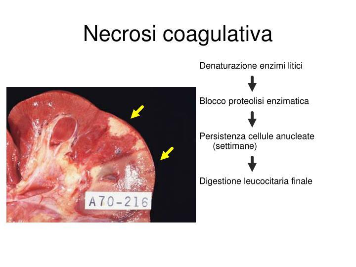 Necrosi coagulativa