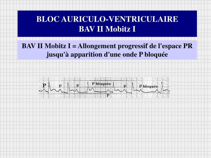 BLOC AURICULO-VENTRICULAIRE