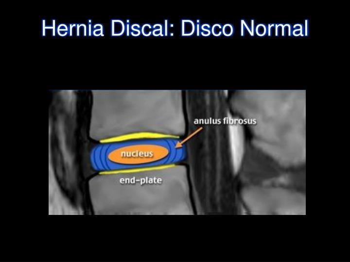 Las hernias intervertebrales del departamento lumbar la gimnasia