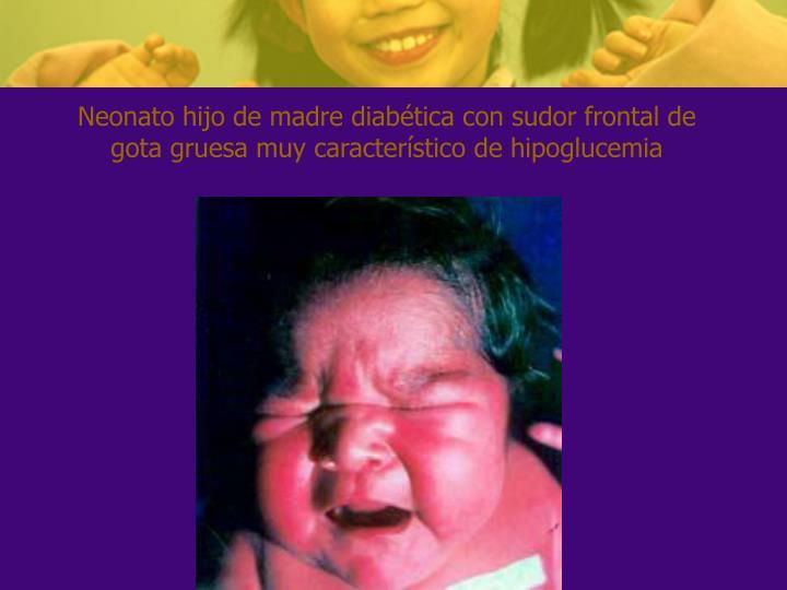 Neonato hijo de madre diabética con sudor frontal de