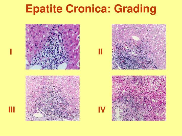 Ppt epatite infettiva virus epatotropi maggiori a b c d - Epatite b periodo finestra ...