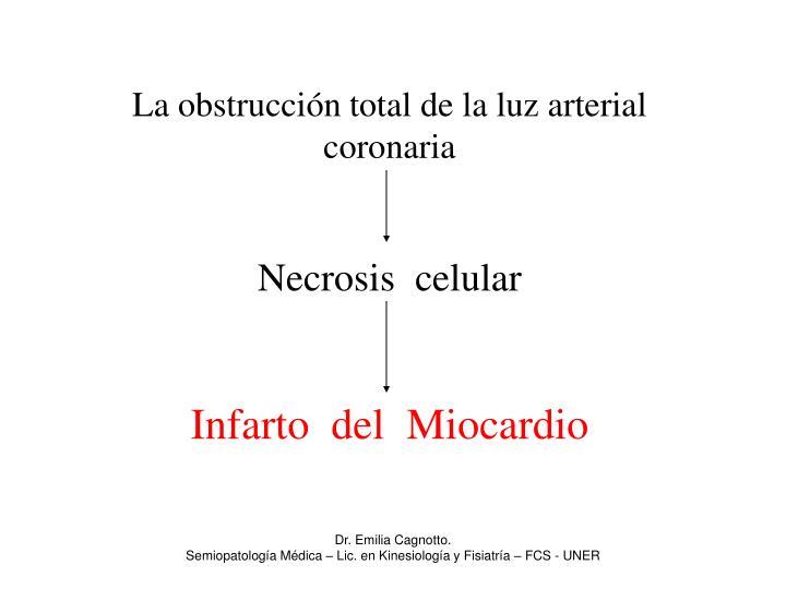 La obstrucción total de la luz arterial coronaria