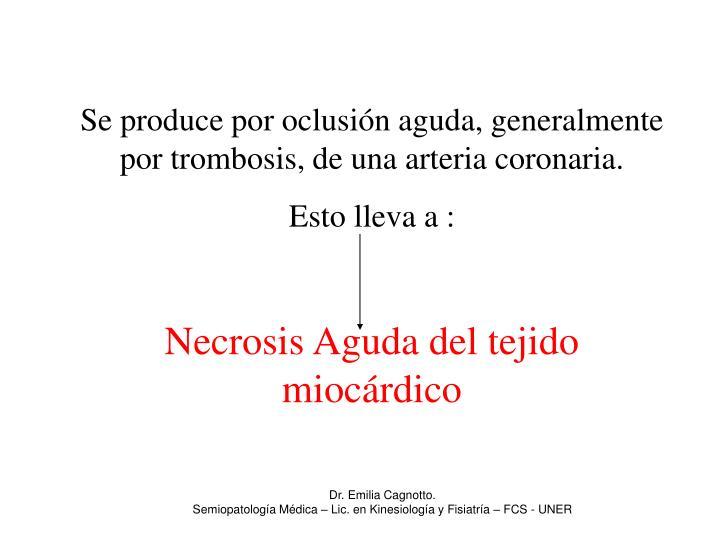 Se produce por oclusión aguda, generalmente por trombosis, de una arteria coronaria.