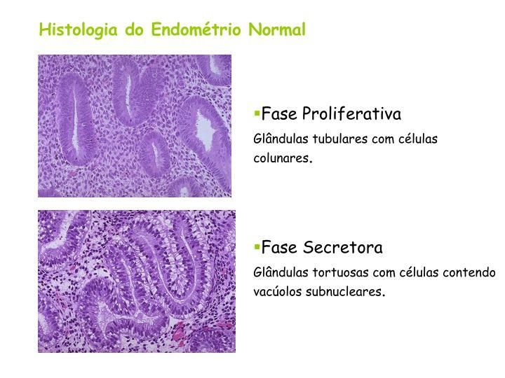 Histologia do Endométrio Normal