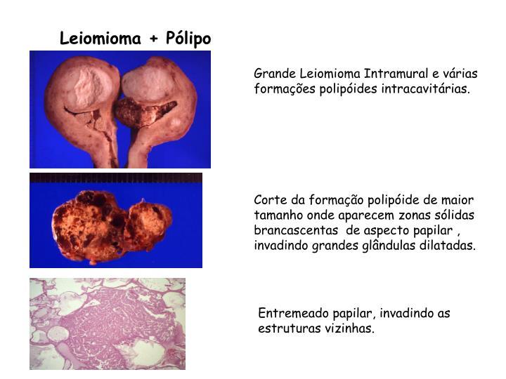 Leiomioma + Pólipo
