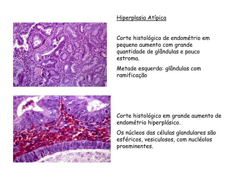 Hiperplasia Atípica