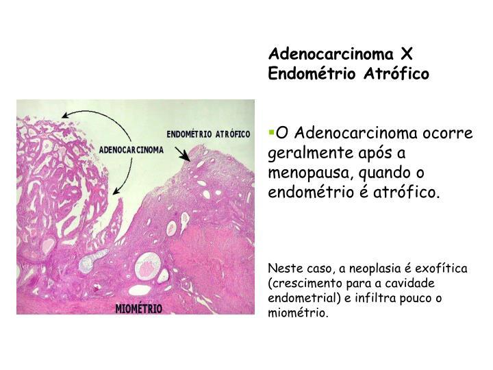 Adenocarcinoma X Endométrio Atrófico