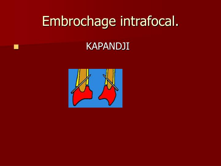 Embrochage intrafocal.