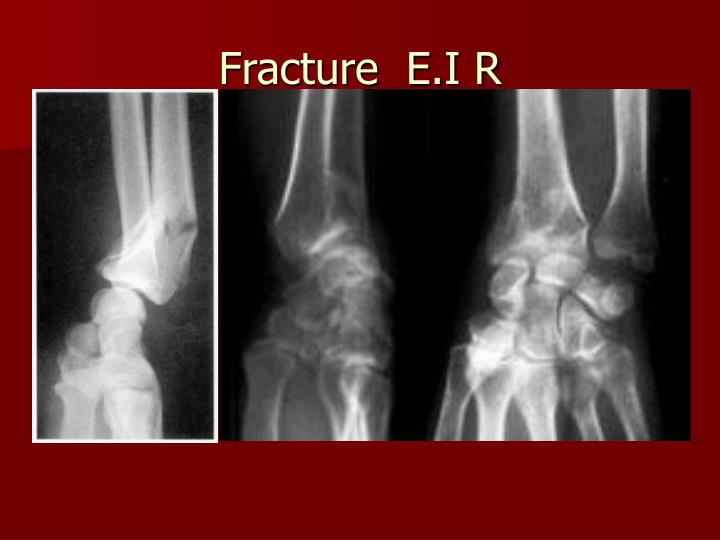 Fracture  E.I R