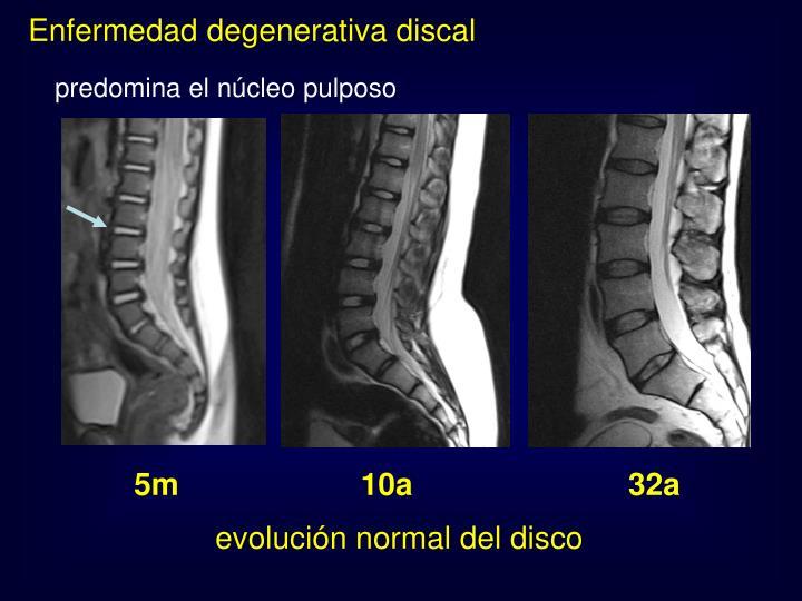 El dolor en el cuello a la izquierda y la hormiguita