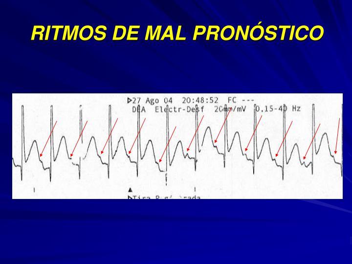 RITMOS DE MAL PRONÓSTICO