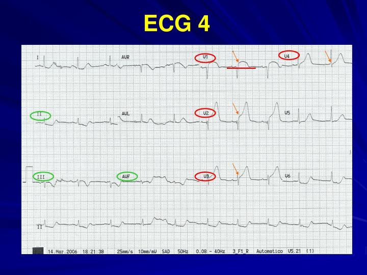 ECG 4