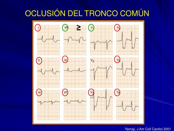 OCLUSIÓN DEL TRONCO COMÚN